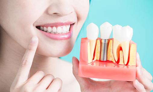 Dental Implants: Advantages and Methods