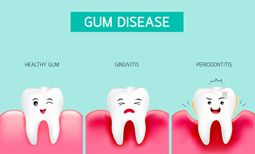 Here's What You Need To Know About Gingivitis