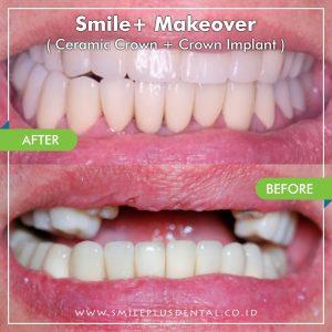 Smile-Makeover2-min