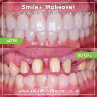 Smile-Makeover-1024x1022-min