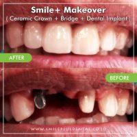 Smile-Makeover3-min