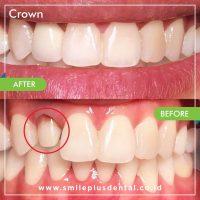 crowns-min
